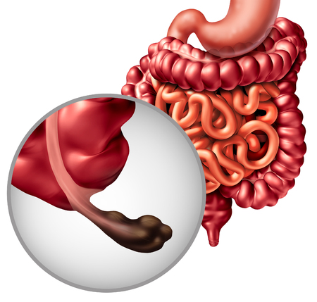Appendix cancer and Intestine disease or gastrointestnal digestion with a malignant tumor symptoms and diagnosis problem as digestion discomfort or constipation and infection as a 3D illustration.