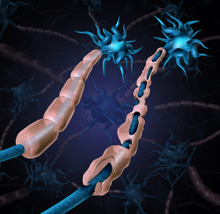 Multiple sclerosis damaged myelin or MS autoimmune disease with healthy nerve with exposed fibre with scarrred cell sheath loss as a 3D illustration. 스톡 콘텐츠