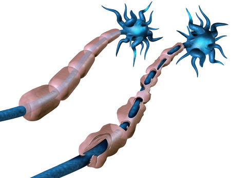 Multiple sclerosis or MS autoimmune disease with healthy nerve and damaged myelin with exposed fibre with scarrred cell sheath loss as a 3D illustration.