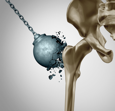 Strong bones and healthy human bone orthopedics and strength in mineral density medical concept as a wrecking ball destroyed by  osteoporosis prevention medicine as 3D illustration. Archivio Fotografico