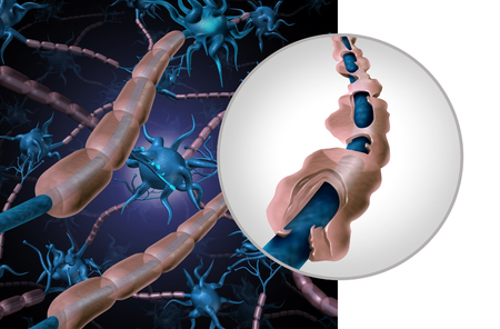 Multiple sclerosis myelin disease or MS autoimmune disorder with healthy nerve with exposed fibre with scarrred cell sheath loss as a 3D illustration.