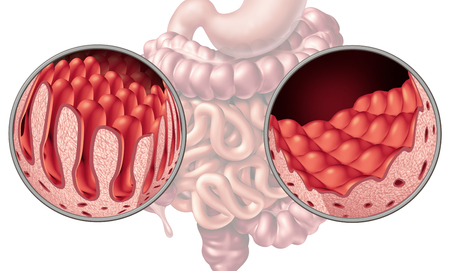 Celiac or coeliac intestine disease anatomy medical concept with normal villi and damaged small bowel lining as an autoimmune disorder of the digestion system with colon and stomach as a 3D illustration.