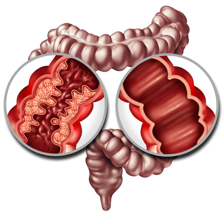Crohn syndrome disease or crohns illness and healthy colon as a medical concept with a close up of a human intestine with inflammation symptoms causing obstruction as a 3D illustration.
