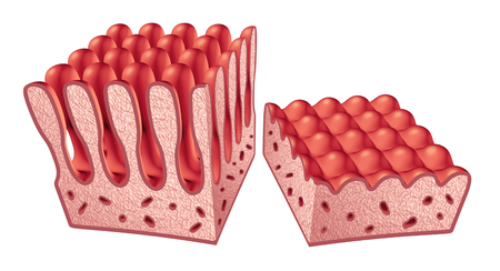 Celiac or coeliac disease anatomy medical concept with normal villi and damaged small intestine lining as an autoimmune disorder of the digestion system as a 3D illustration.