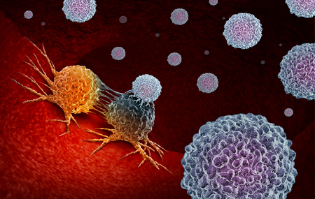 Cancer Immunotherapy as a human immune system therapy concept as a biomedical or biomedicine oncology treatment using the natural T cell fighting properties of the body as a 3D render. 免版税图像 - 116775602