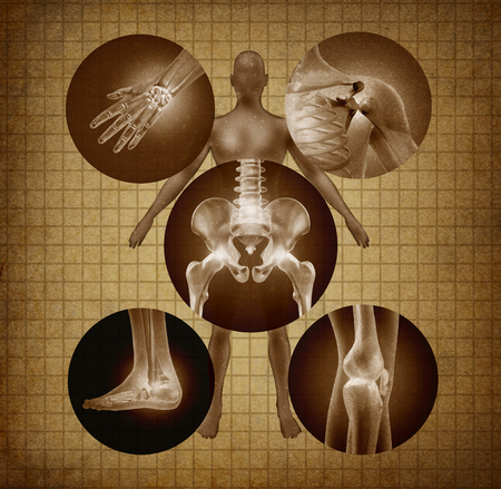 Human painful joints and anatomy concept as body pain and injury or arthritis illness symbol for health care and medical symptoms due to aging or sports and work injury in a grunge texture wth 3D illustration elements..