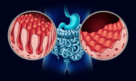 Celiac or coeliac disease as an intestine anatomy medical concept with normal villi and damaged small bowel lining as an autoimmune disorder of the digestion system with colon and stomach as a 3D illustration.