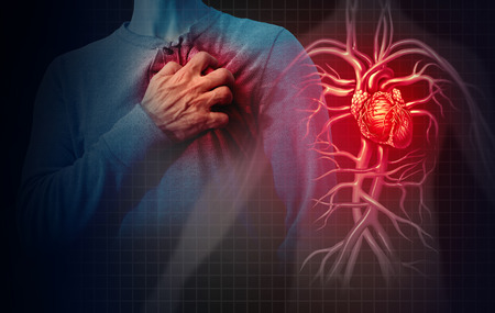 Hartaanvalconcept en menselijke cardiovasculaire pijn als een anatomie medisch ziekteconcept met een persoon die lijdt aan een hartziekte als een pijnlijke coronaire gebeurtenis met 3D-illustratiestijlelementen. Stockfoto
