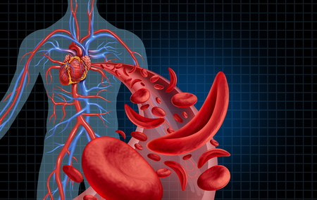Sickle cell cardiovascular heart blood circulation and anemia as a disease with normal and abnormal hemoglobin in a human artery anatomy as a medical illustration concept with 3D illustration elements. Stock Photo