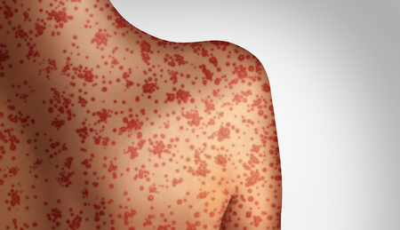 Measles concept as a deadly outbreak immunize,disease and viral illness as a contagious chickenpox or a skin rash in a 3D illustration style. Stock fotó - 117141101
