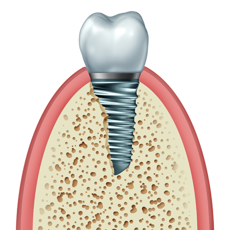 Dental Implant and tooth prosthetic concept inside the jaw bone and gum tissue with an orthodontic crown abutement and metal screw isolated on a white background as an orthodontist dentistry surgery object as a 3D illustration.