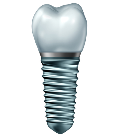 Dental Implant or endosseous tooth prosthetic concept with an orthodontic crown abutement and metal screw isolated on a white background as an orthodontist dentistry surgery object as a 3D illustration.