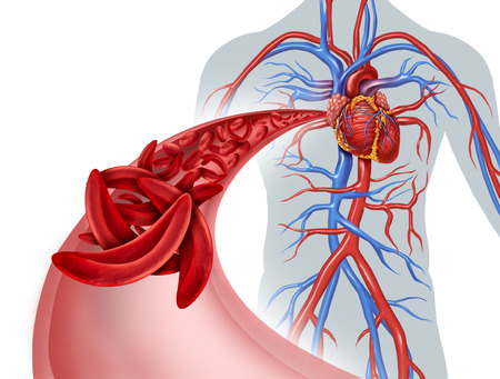 Sickle cell heart circulation blockage and anemia as a disease with normal and abnormal hemoglobin in a human artery anatomy with heart cardiovascular medical illustration concept with 3D illustration elements.