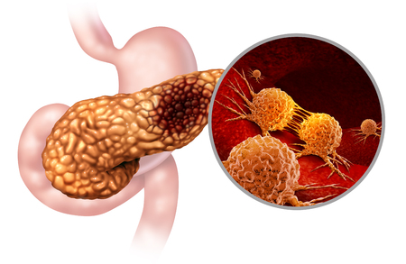 Pancreatic cancer anatomy concept and Pancreas malignant tumor symbol as a digestive gland body part with a microscopic magnification of malignant tumor cells dividing and spreading with 3D illustration elements.
