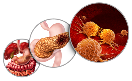 Pancreas cancer anatomy diagram and pancreatic malignant tumor concept as a medical symbol of a digestive gland body part with a microscopic magnification of mutating cells dividing and spreading with 3D illustration elements.