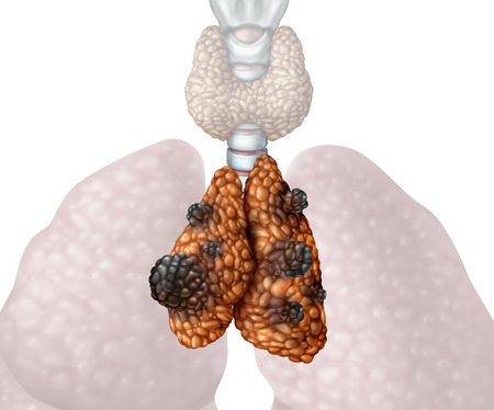 Thymus cancer or thymoma and thymic carcinoma disease as a gland anatomy illness with growing malignant mutating cell growth as an icon isolated on a white background in a 3D illustration style.