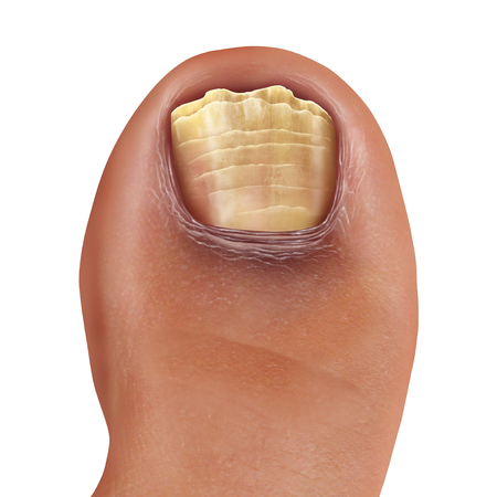 Infected fungal toe nail and feet infection or onychomycosisor tinea unguium as toenail foot disease with damaged unhealthy human anatomy in a 3D illustration style.