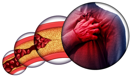 Human heart disease and chest pain from clogged arteries and artery damaged with cholesterol resulting in a cardiac arrest with 3D illustration elements.