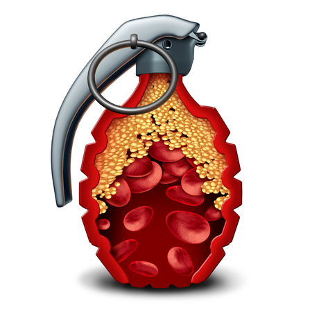 Heart disease bomb and cholesterol danger coronary artery illness as a medical concept with a live grenade inside an artery or vein with plaque formation as clogged arteries and atherosclerosis as a 3D illustration. Zdjęcie Seryjne