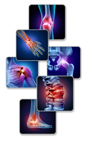 Human joint pain concept as skeleton and muscle anatomy of the body with a group of sore joints as a painful injury or arthritis illness symbol for health care and medical symptoms with 3D illustration elements.