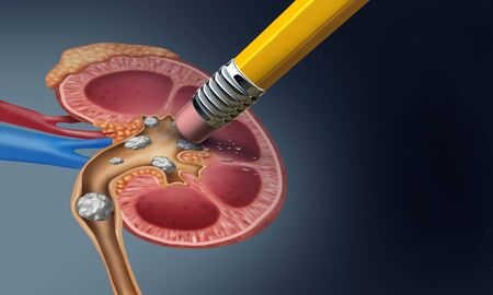 Kidney stone removal medical concept as an organ with painful mineral formations as a medicine symbol with a cross section with 3D illustration elements. Stock fotó