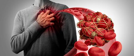 Blood clot health risk or thrombosis medical illustration symbol as a group of human blood cells clumped together by sticky platelets and fibrin as a blockage in an artery or vein leading to the heart