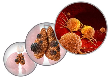 Thymus cancer disease or thymoma and thymic carcinoma illness as a gland anatomy sickness with growing malignant mutating cell growth as an icon isolated on a white background with 3D illustration elements. Stock Photo