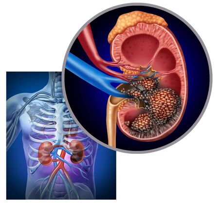 Cancer of the kidney medical concept as malignant cells in a human body attacking the urinary system and renal anatomy as a symbol for tumor growth treatment and risk with 3D illustration elements. Stock Photo