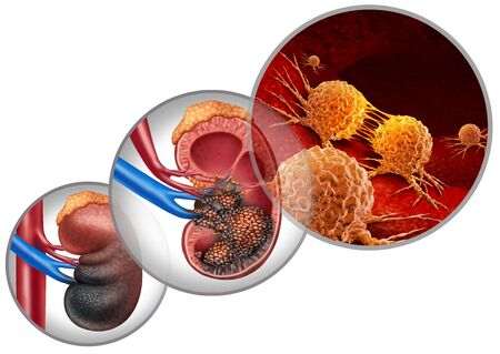 Kidney cancer disease medical concept as malignant cells in a human body attacking the urinary system and renal carcinoma anatomy as a symbol for tumor growth treatment and risk with 3D illustration elements.