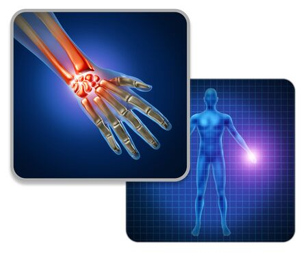 Human hand joint pain concept as skeleton and muscle anatomy of the body with a group of sore wrist and finger joints as a painful injury or arthritis illness symbol with 3D illustration elements. Imagens