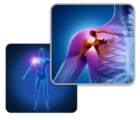 Human shoulder joint pain concept as skeleton and muscle anatomy of the body with sore inflammation as a painful injury or arthritis illness symbol with 3D illustration elements.