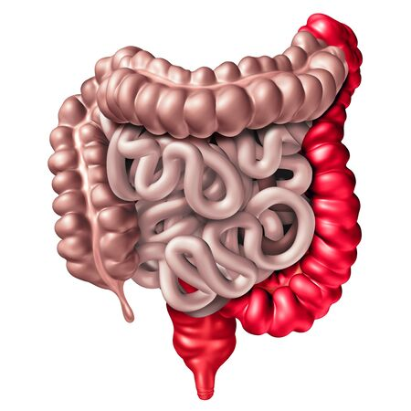 Ulcerative colitis as an inflammatory bowel disease with a humanrectum and colonas a digestive system organ and digestion body part concept with inflamed large intestines on white as a 3D illustration.