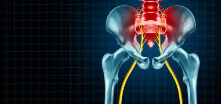 Painful sciatica nerve symptom and pain diagnosis as a medical concept for a disease causing physical problems with 3D illustration elements.