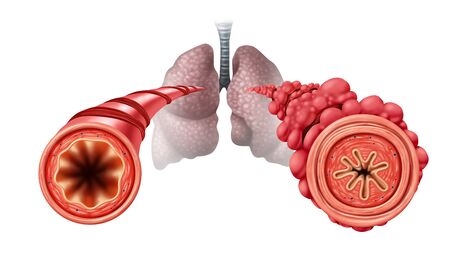 Popcorn lung condition concept or obliterative bronchiolitis disease as obstructed bronchial tubes constricted caused by vaping respiratory muscle tightening and swelling with 3D illustration elements. Stock fotó - 134343281