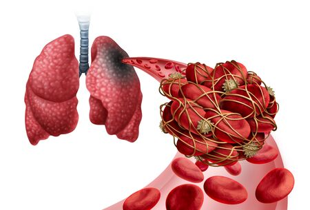 Pulmonary Embolism with a blood clot as a disease with a blockage of an artery in the lungs with 3D illustration elements.