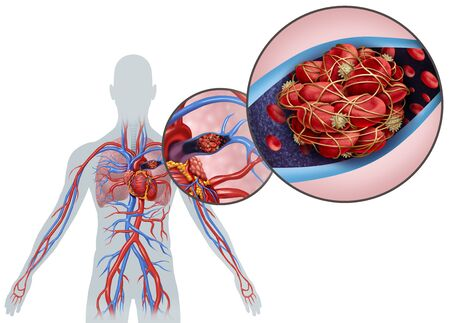 Pulmonary Embolism with a blood clot as a disease with a blockage of an artery in the lungs with 3D illustration elements. Stock Photo