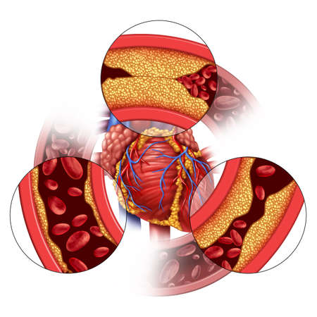 Heart artery disease and coronary medical concept as gradual plaque formation resulting in clogged arteries and atherosclerosis as human anatomy with cholesterol with 3D illustration elements. 版權商用圖片