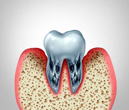 Dead tooth and dying teeth stomatology dental disease and poor oral hygiene health problem due to bacteria infection and cavity or cavities with rotten bone and gum inflammation as a 3D illustration.