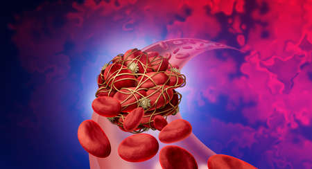 Blood clot health risk or thrombosis medical illustration concept symbol as a group of human blood cells clumped together by sticky platelets and fibrin as a blockage in an artery or vein as a 3D render.
