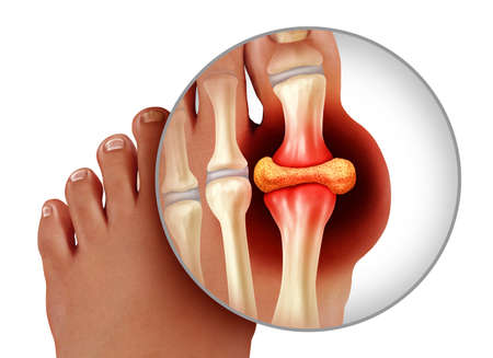 Foot gout and painful feet arthritis disease as toes close up with a human toe as a hyperuricemia symbol of treating and diagnosing chronic pain isolated on a white background as a 3D illustration style. Stock Photo