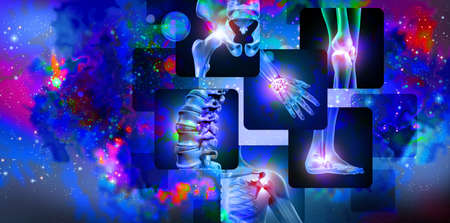 Pain of the joints concept background as skeleton and muscle anatomy of the body with a group of sore joints as a painful injury or arthritis illness symbol for health care and medical symptoms with 3D illustration elements.