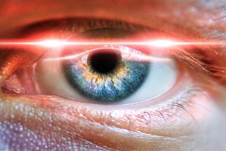 Un ?il masculin scanné pour une identification sécurisée ou un concept de correction de l'iris médical Banque d'images - 83608467
