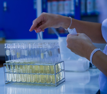 woman take a sample in tissue culture test-tube filled with culture media