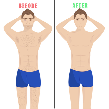 Man depilation.Laser hair removal. Male epilation. Two men before and after.