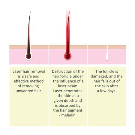 Esquema de depilación láser. Descripción del procedimiento de cosmetología.