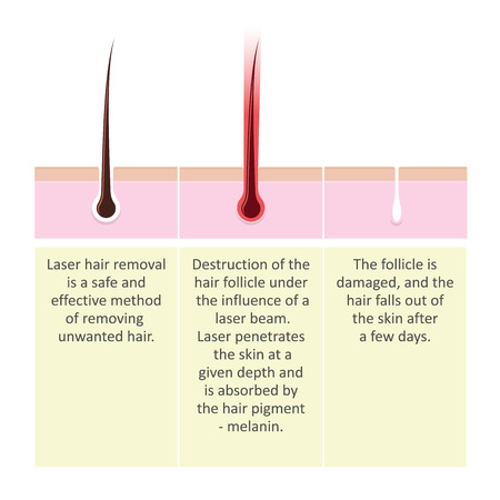 Scheme of laser hair removal. Description of the cosmetology procedure.