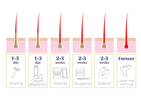 Comparison of the popular methods of hair removal: laser, epilator, waxing, shaving, shugaring, Imagens - 75264145
