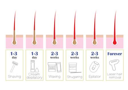 Vergleich der beliebtesten Methoden der Haarentfernung: Laser, Epilierer, Wachsen, Rasieren, Shugaring, Standard-Bild - 75264145