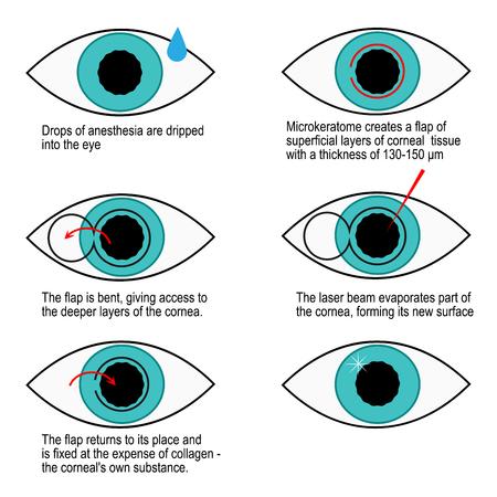 Procedura di correzione laser della visione passo dopo passo. Illustrazione di infografica
