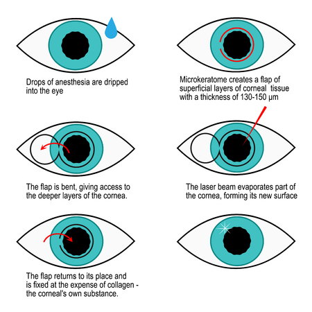 Procedure of laser correction of vision step by step. Infographics illustration.